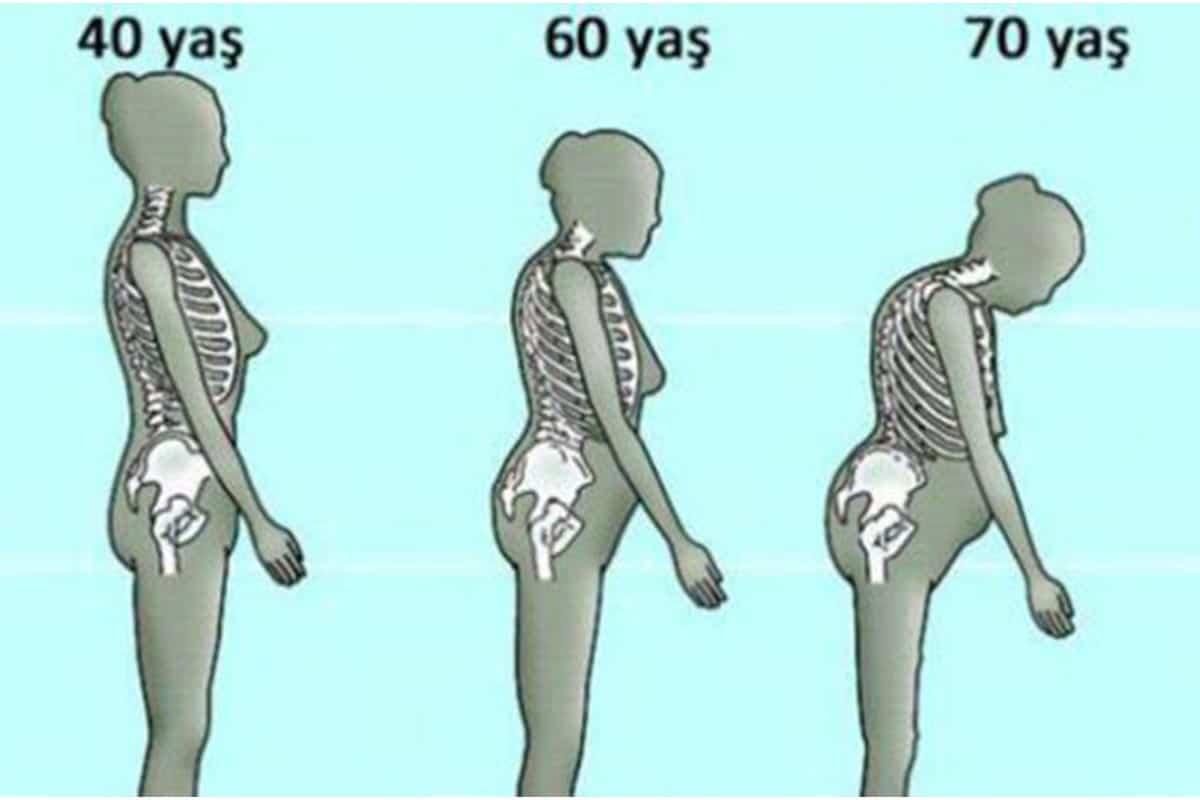 osteoporoz, kemik erimesi