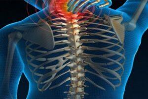omurilik yaralanması, spinal kord yaralanması